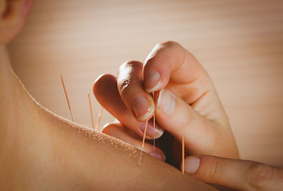 A person places needles in someone's back as part of an acupuncture procedure